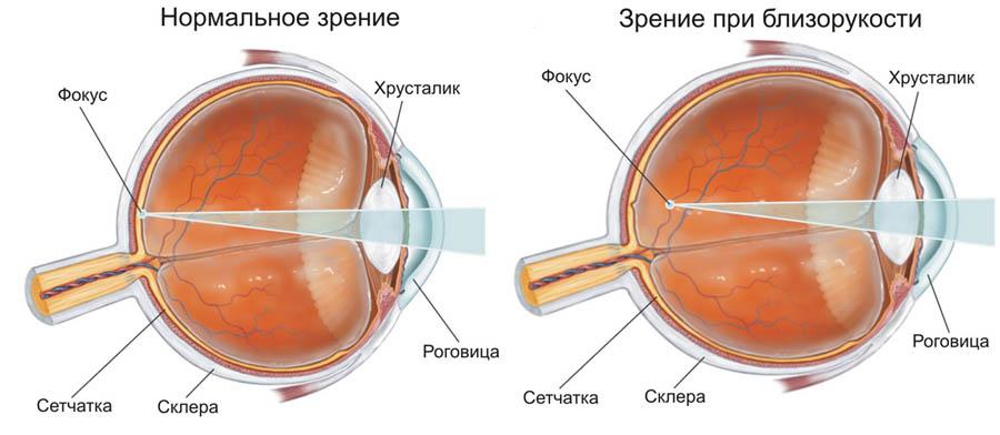 Кератотомия фото